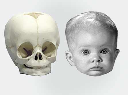 Дело в том, что череп ребенка
